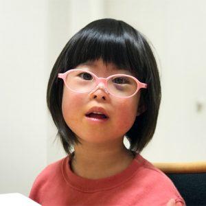 ダウン症児の成長日記 階段から転落後 目の周りのアザ